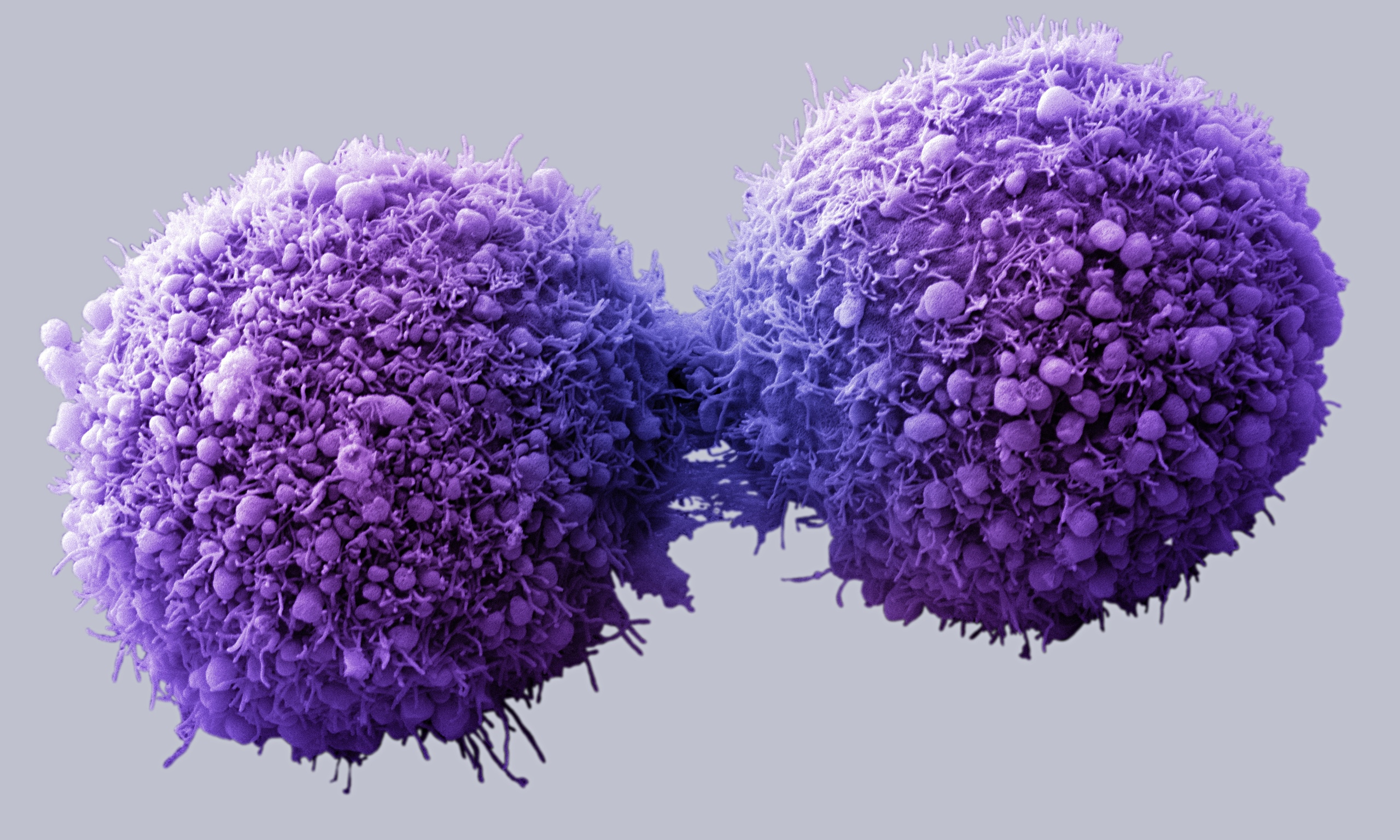 Image of pancreatic cancer cells