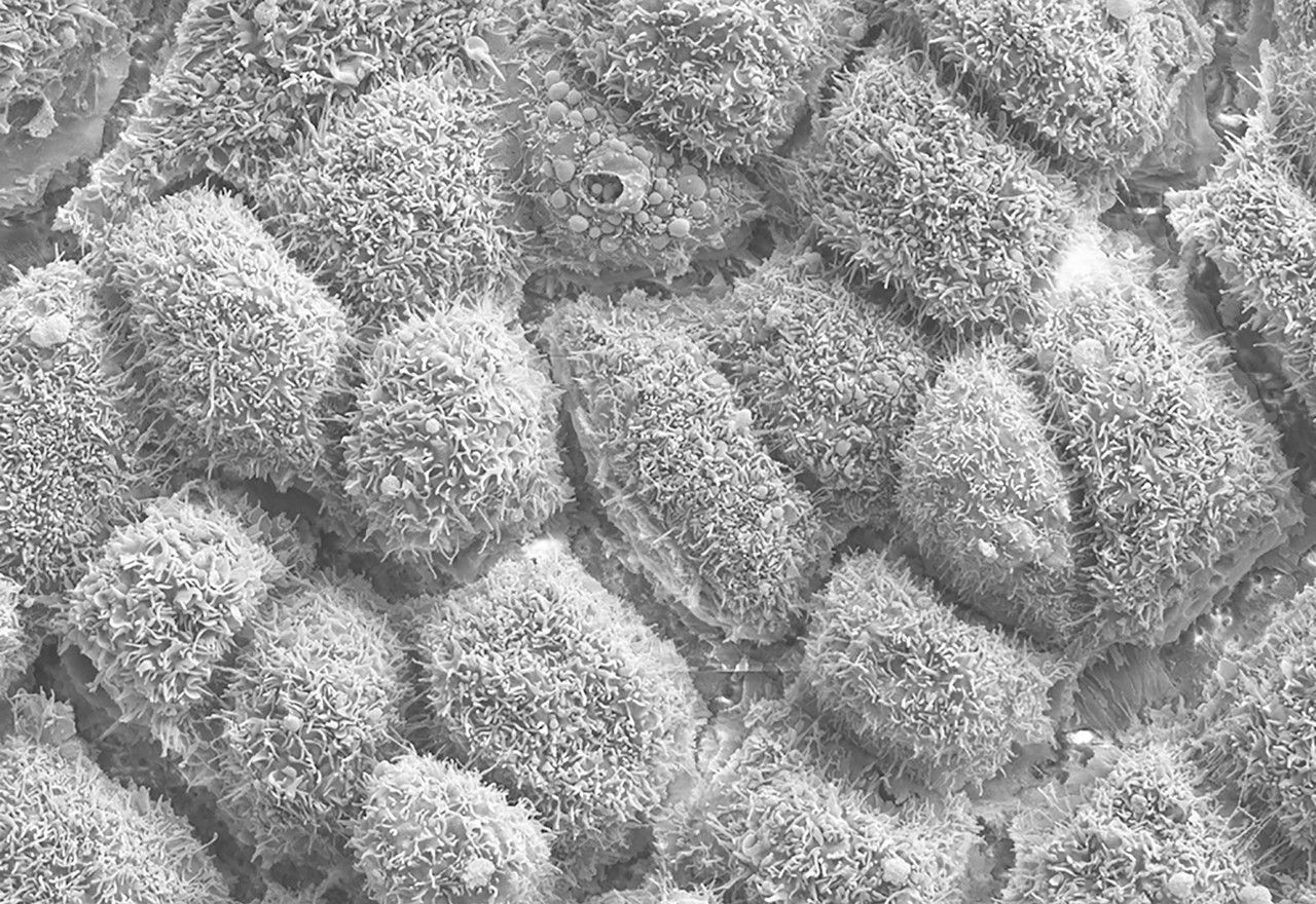 Scanning electron micrograph of retinal pigment epithelium (RPE). Hairy projections are apical microvilli.