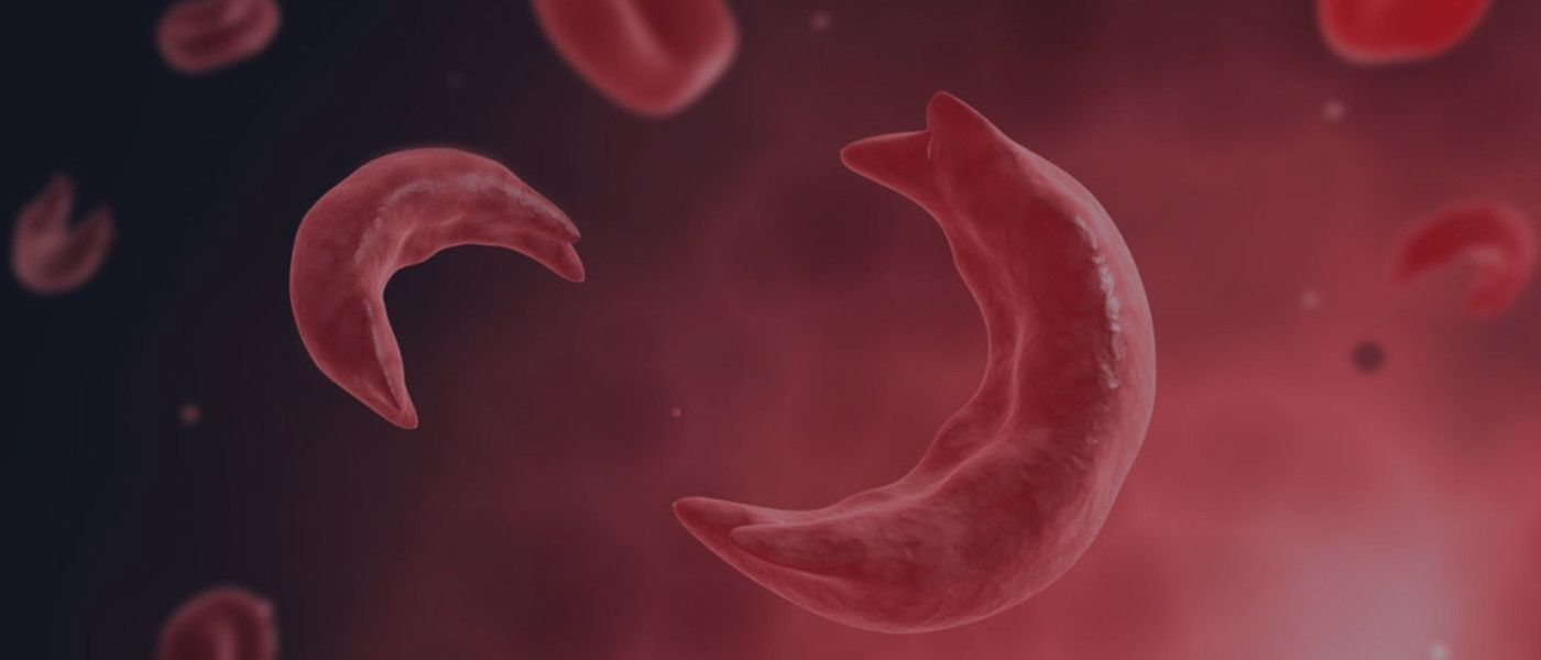 image of sickle cells