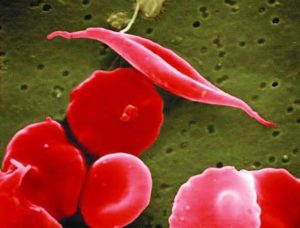 electron micrograph of a sickled red blood cell next to healthy round red blood cells