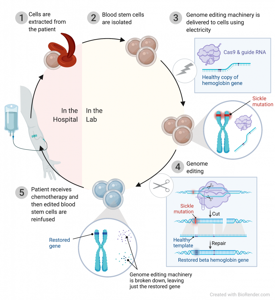 steps for using CRISPR to treat sickle cell disease