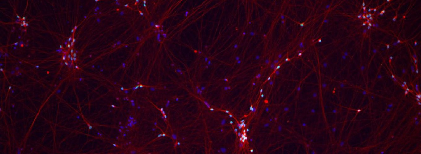 Image of fluorescent human neurons