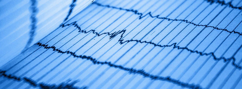 close-up of a blue EKG