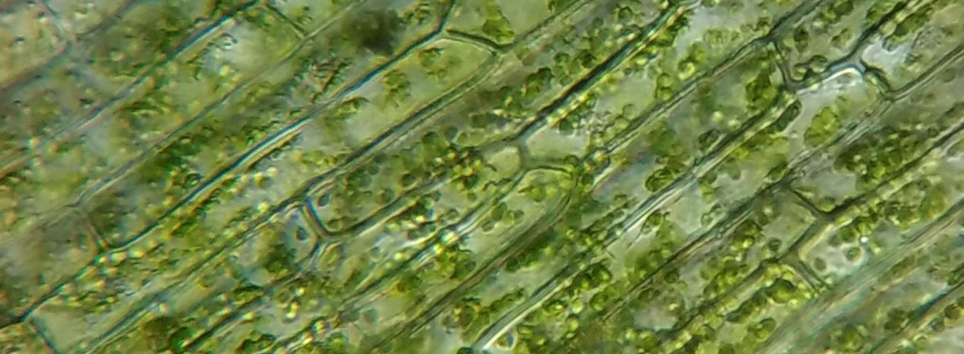 micrograph of chloroplasts