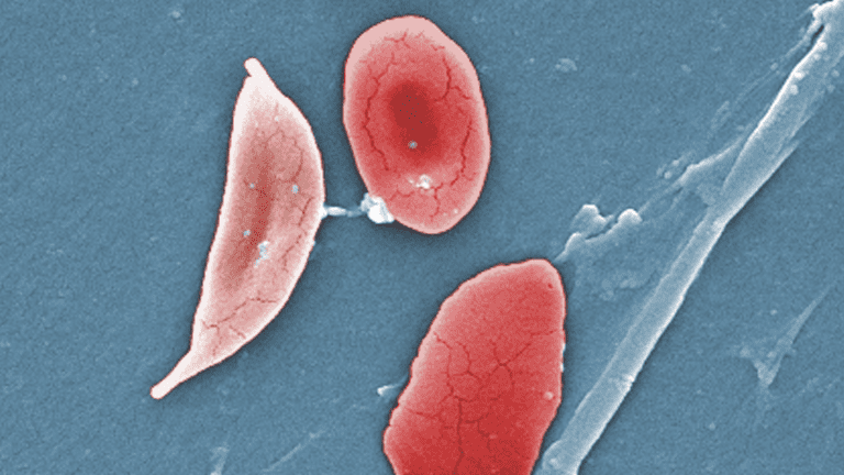micrograph of a sickled red blood cell and healthy red blood cells